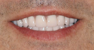An after image of a CeraSmile patient that found a better alternative to dentures with an all-ceramic smile