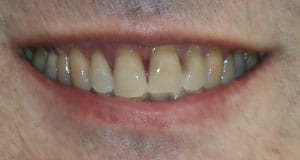 A before image of a patient looking for a better alternative to traditional dentures