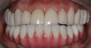 A CeraSmile patient shows off her all-ceramic smile, an alternative to dental implants and dentures