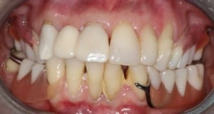 A before image of a patient of CeraSmile, afraid to show off her smile until finding Dr. Rod Strickland's all-ceramic smile alternative