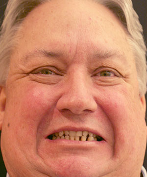 Bad dentures made this patient ashamed to show off his smile without the limitations of dental implants