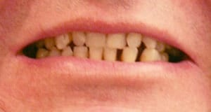 Bad Teeth made this patient ashamed to show off his smile and was looking for an alternative to traditional dentures