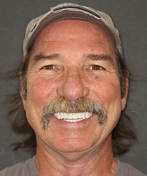 With CeraSmile, this patient of Dr. Strickland is able to show off his all-ceramic smile