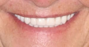 A cosmetic dental patient after getting the help of CeraSmile inventor Dr. Rod Strickland, DDS
