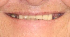 A patient of Dr. Rod Strickland, DDS shows off her smile before CeraSmile