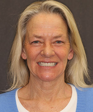A before photo of a patient of Dr. Rod Strickland showing off her smile after an all-cermic smile, CeraSmile