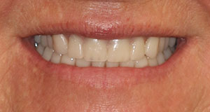 An image of a happy patient of Dr. Strickland showing off her smile before she found CeraSmile