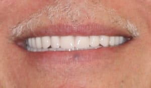 After CeraSmile, Dr. Rod Strickland's patient was able to find a better alternative to dentures