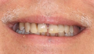 Before CeraSmile, this patient of Dr. Strickland's knew the limitations of implant bridges and dental implants